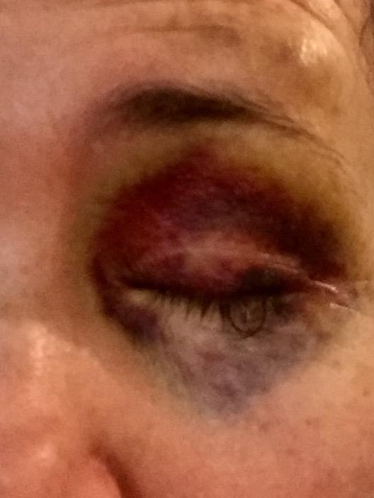 eye day 1 a